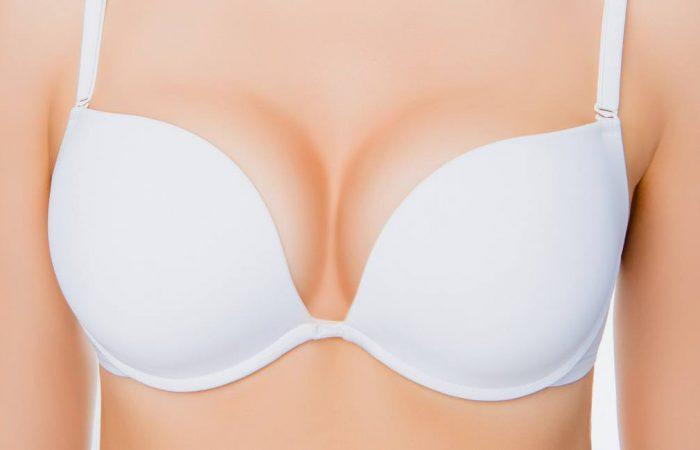 Plástica das mamas: quais são os tipos?