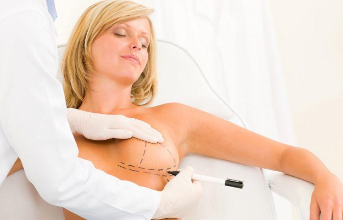 Especialista em Mamoplastia de Aumento