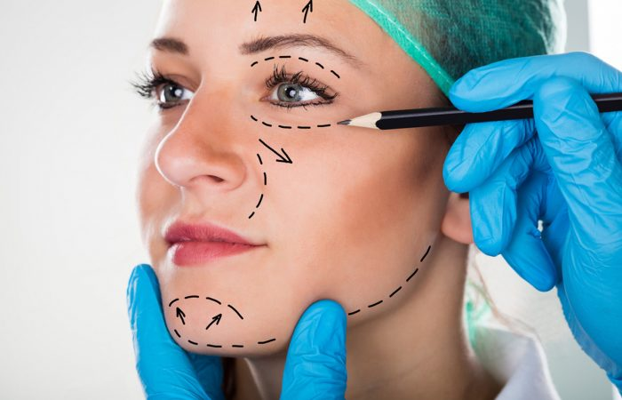 Cirurgias de Facelift