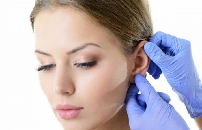 Como funciona a Cirurgia de Otoplastia