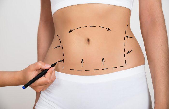 Cirurgia de Abdominoplastia