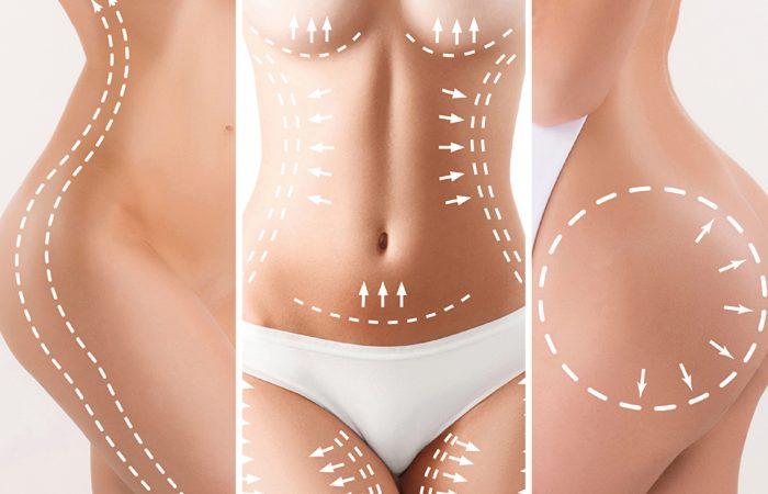Abdominoplastia: Riscos X Benefícios! Vale a Pena?