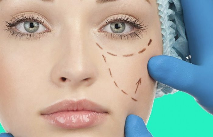 Cirurgia das Pálpebras (Blefaroplastia)