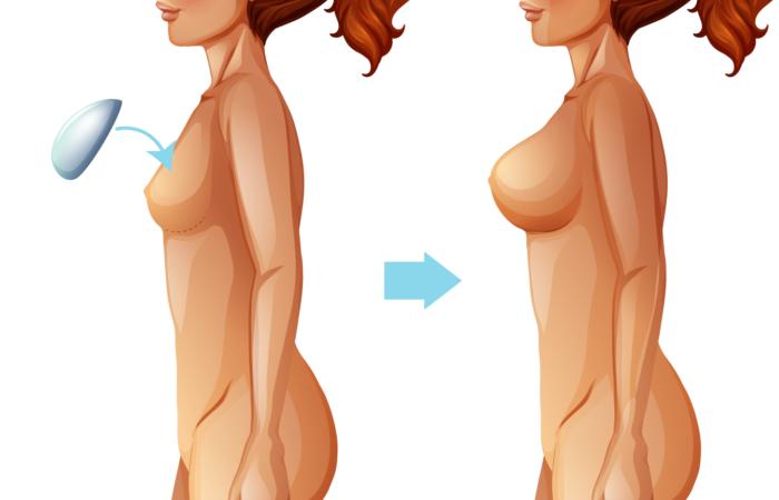 Quando trocar a prótese de silicone das mamas?